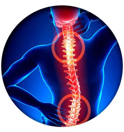 Przyczyny, objawy, zapobieganie — bóle zwyrodnieniowe kręgosłupa