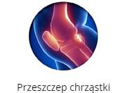 prz-chrz-